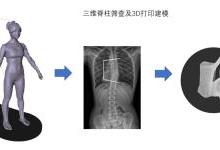 步影医疗通过AI视觉聚焦脊柱侧弯病种