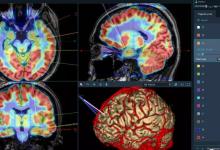 创新神经外科手术机器人获批上市