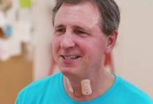 可伸缩电子元件 用于跟踪中风患者的康复