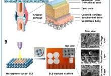 张胜民教授利用3D打印生物材料成功修复关节软骨