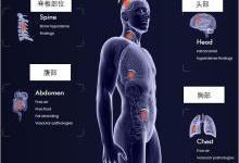 利用AI技术简化放射医生的工作流程