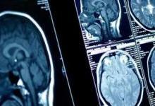 医疗人工智能真正落地需解决三大问题