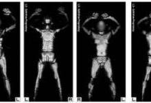 X射线扫描仪的安全替代品
