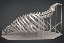 唐都医院开展3D打印胸壁重建手术