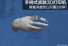 手持式皮肤3D打印机 2分钟修复伤口