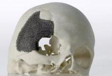 3D打印在生物医用材料产业应用展望