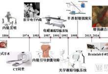 MR手术导航系统让医生全知微创手术