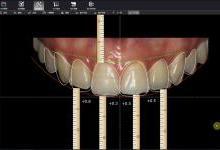 杨眉:合AI与3D打印去变革口腔诊疗痼疾
