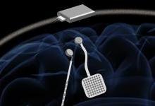 预防癫痫发作的无线自主闭环神经刺激器