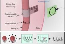 斯坦福研发血流传感器 植入之后无需摘除