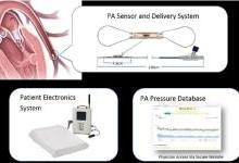 CardioMEMS心衰监测传感器降低住院率