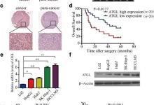 LncRNA NEAT1调控异常脂肪分解并促进肝癌增殖