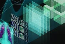 进军医疗行业 英伟达向美国放射学院提供AI工具