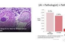 AI与肝脏病学医学影像中的临床应用